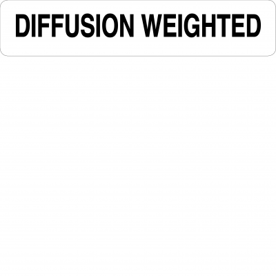 Diffusion weighted
